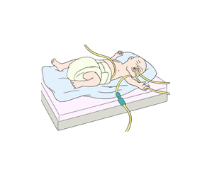 Krankes Herz von Geburt an oder durch den Lebensstil